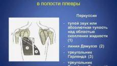 Перкуторный звук при гидротораксе
