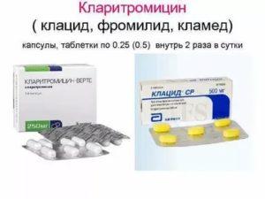 Клацид или фромилид что лучше