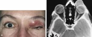 Киста в лобной пазухе симптомы