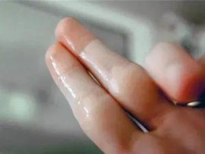 Жидкие прозрачные выделения как вода