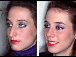 Можно ли изменить форму носа без операции