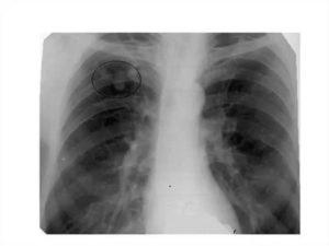 Восстановление после туберкулеза легких