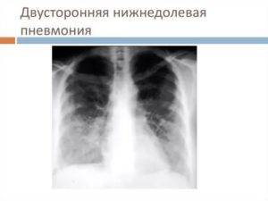 Двусторонняя нижнедолевая пневмония