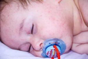 Аллергия на физраствор у ребенка