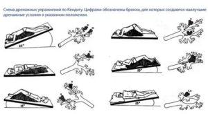 Дренажные упражнения при заболеваниях органов дыхания