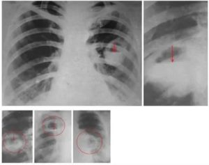 Абсцесс легкого рентгенограмма