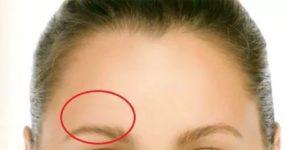 Болит лоб справа над бровью