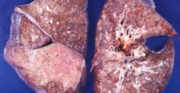 Как выглядят легкие при пневмонии фото