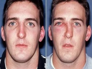 Как выровнять нос в домашних условиях