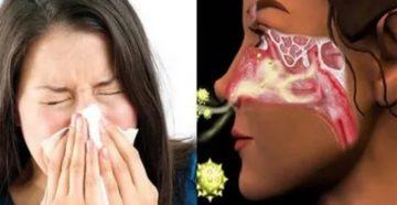 Свербит в носу чихание