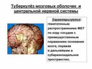 Туберкулез мозговых оболочек и цнс