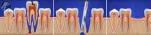 Межзубная перегородка после удаления зуба