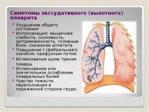Плеврит легких симптомы у детей