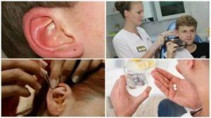 Клещ в ухе у человека симптомы
