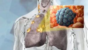 Можно ли вылечить рак легких 4 степени