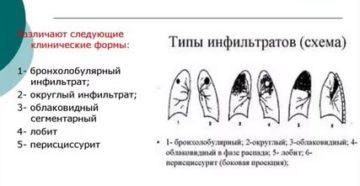 Фаза инфильтрации туберкулеза