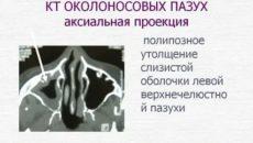 Полиповидное утолщение слизистой верхнечелюстной пазухи
