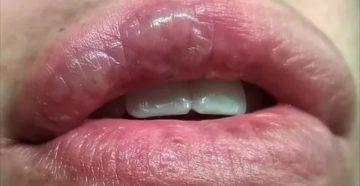 Ожог полости рта кипятком лечение