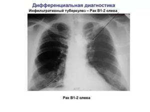 Как отличить туберкулез от рака легких