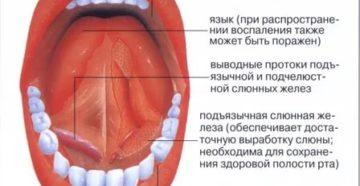 Воспаление слизистой ротовой полости