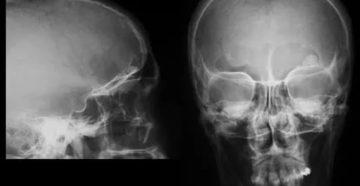 Остеома теменной кости