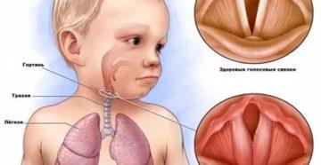 Болезни связок горла