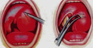 Абсцесс горла лечение в домашних условиях