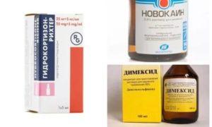 Компрессы с димексидом и гидрокортизоном