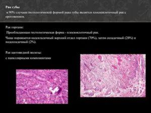 Плоскоклеточный рак с ороговением гортани