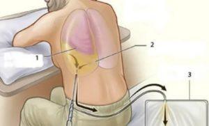 Пункция легких жидкость