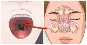 Запах крови в носу причины