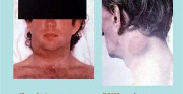 Генерализованная лимфаденопатия при вич